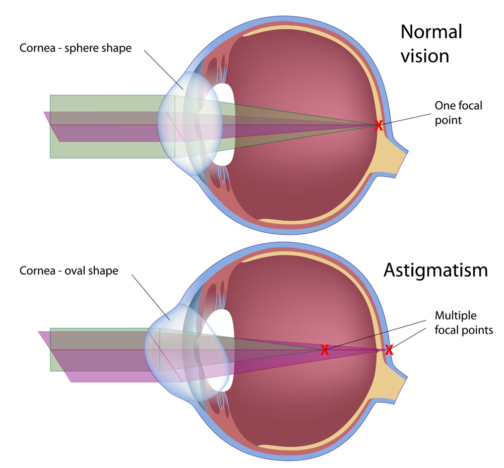 Diagram showing the difference between an eye with normal vision and an eye with astigmatism