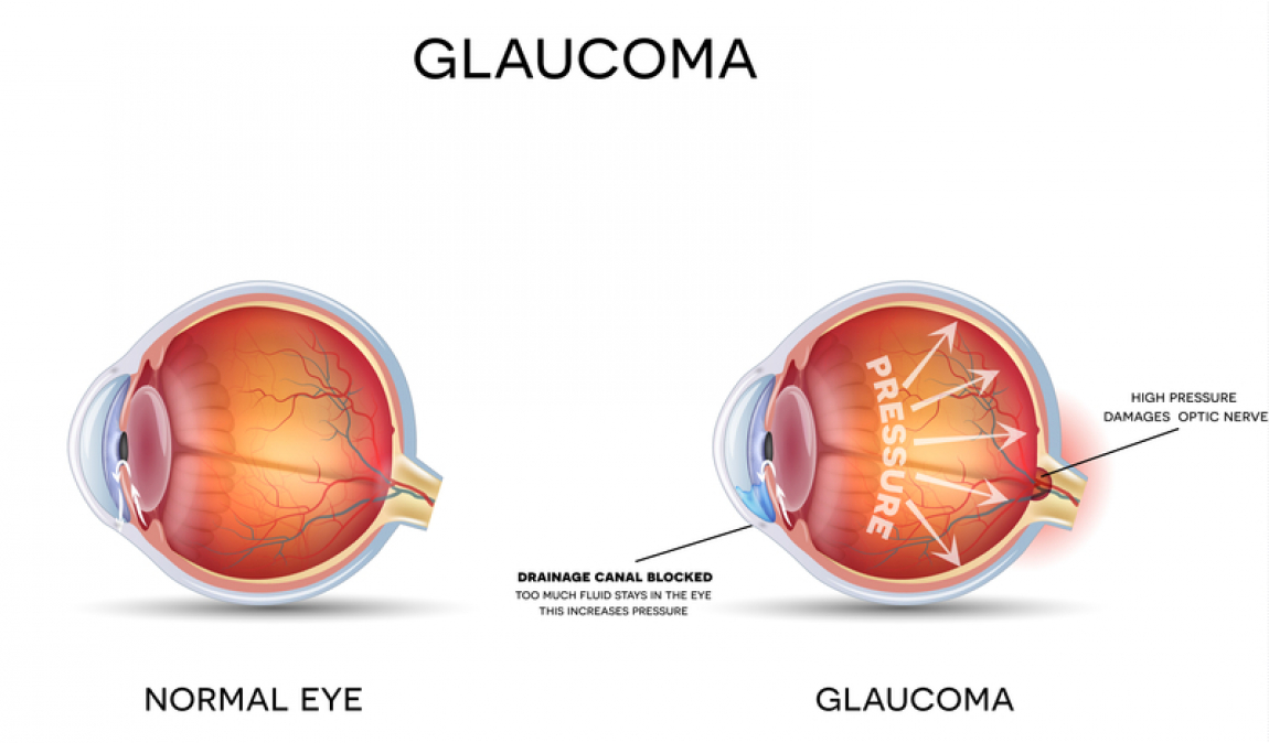 the difference between a healthy eye and an eye with glaucoma