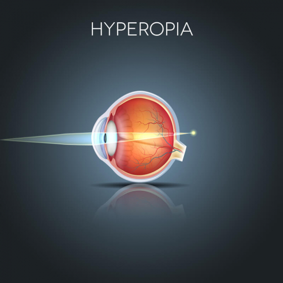 explaining hyperopia, long-sightedness