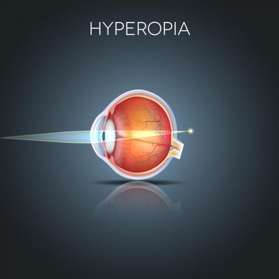 explaining hyperopia