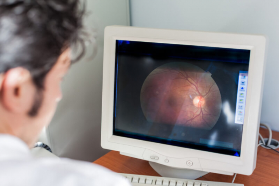 retinal scan on a computer being looked at by an optician for retinal vein occlusion