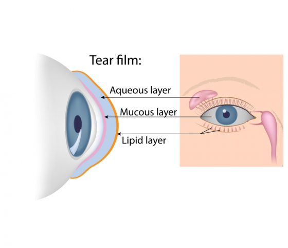 the components of the tear film in the eye to show what causes dry eye