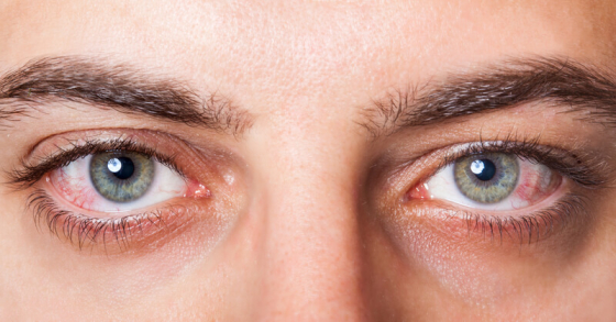 inflamed eyes due to conjunctivitus can cause eye twitches