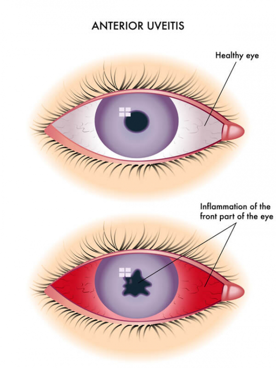 comparision of a normal eye to a eye with Uveitis