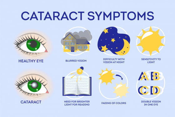 Symptoms of cataracts compared to healthy eye