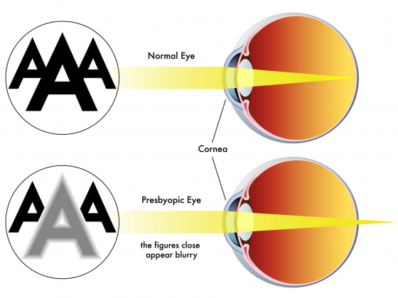 comparision of a normal eye to a eye with presbyopia