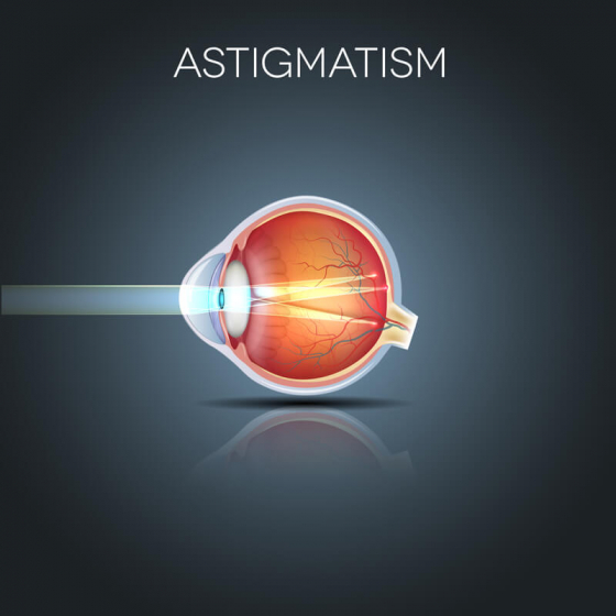 What causes astigmatism and why