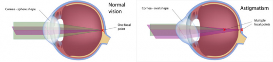 A diagram of the eye showing how astigmatism alters vision