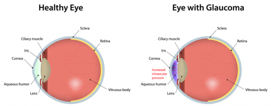 Diagram showing the difference between an eye with normal vision and an eye with glaucoma