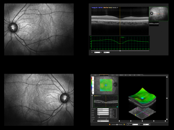 Screenshot of an OCT scan demonstrating layers of the retina