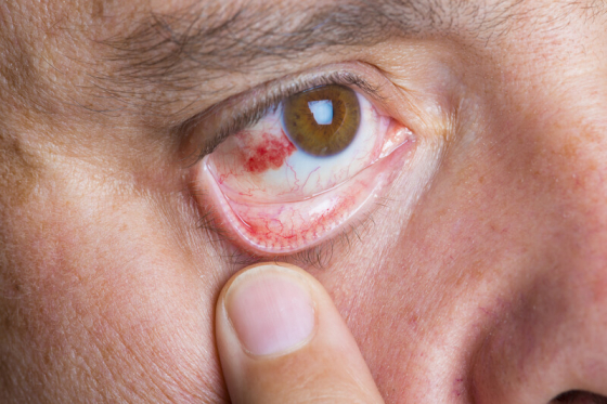 sign of scleritis
