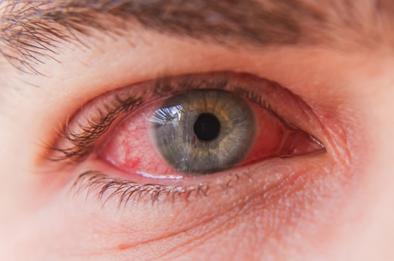 Close up of an eye with conjunctivitis symptoms