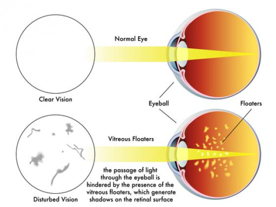 diagram explaining eye floaters