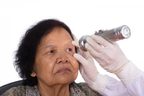 eye being examined by a doctor for dry eye
