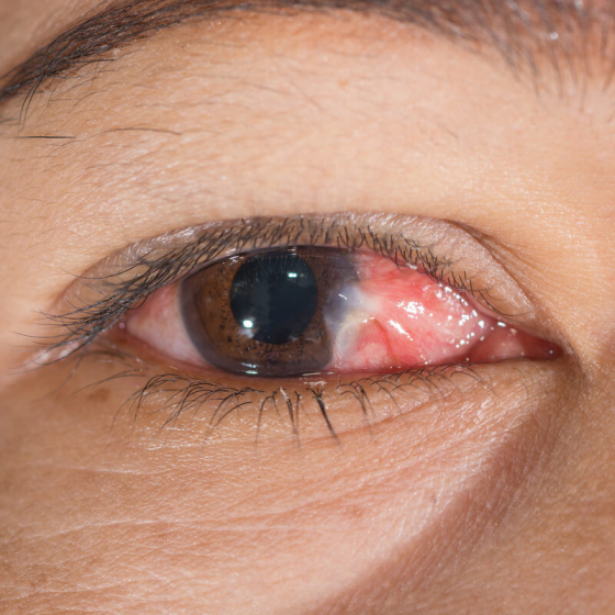 inflamed eye with the eye condition Pterygium