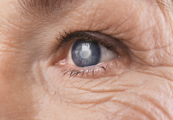 Close up of an eye with a cataract