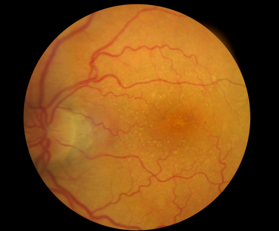 Image of back of eye highlighting the macula