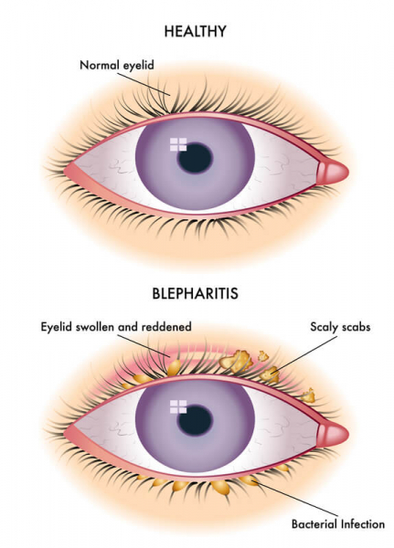 Blepharitis eyelid compared to a normal eyelid