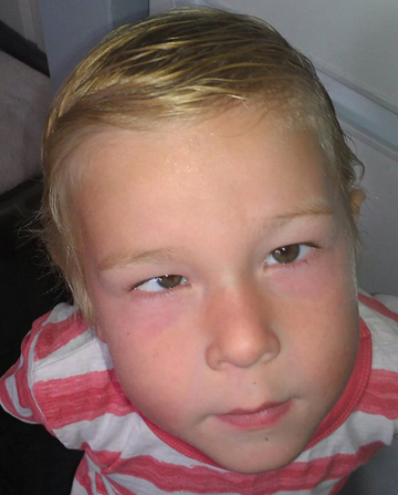 Young child with retinoblastoma symptom